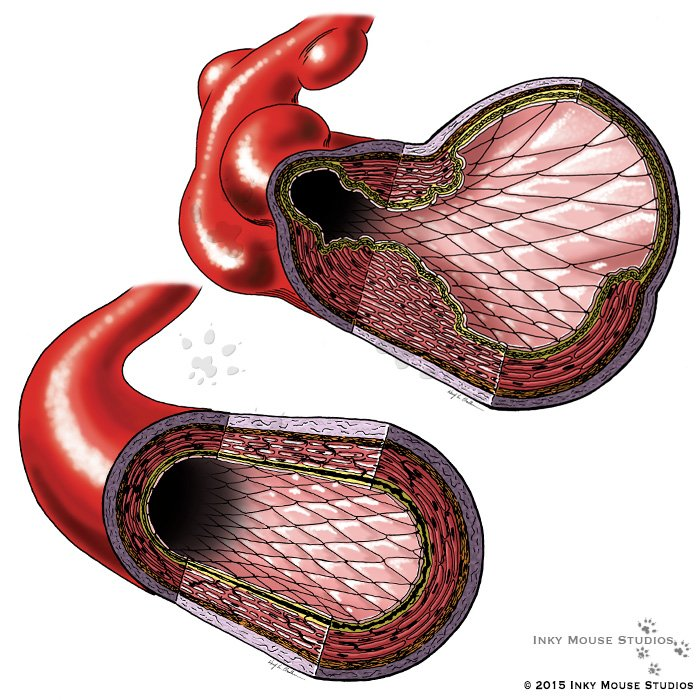 Fibromuscular dysplasia artery cross sections