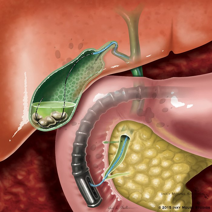 Guidewire placement gallbladder endoscopic procedure