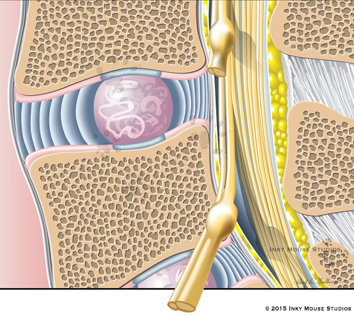Stages of L4 and L5 vertebral disc herniation