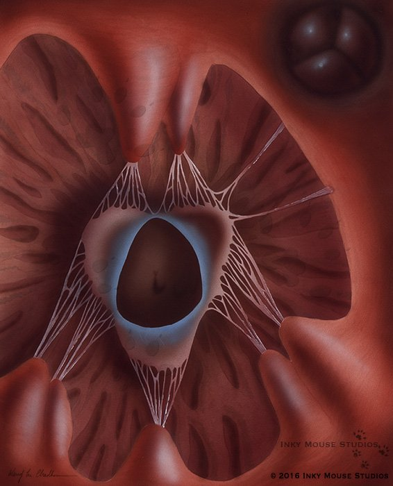 Inside the right ventricle of the human heart